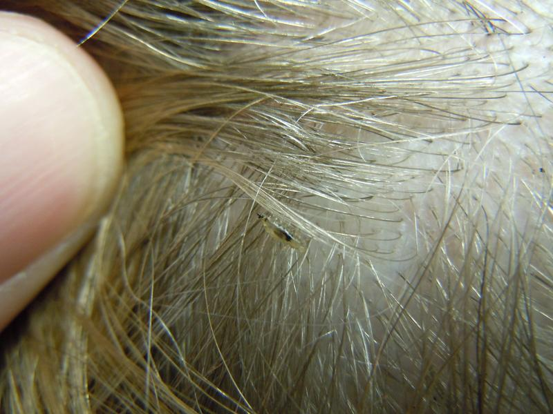 What Do Lice Look Like The Video Is